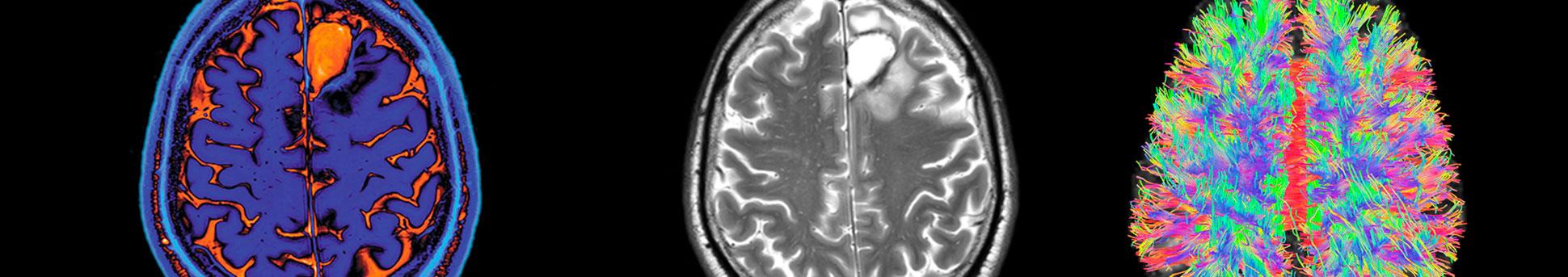 ToNIC Inserm : Toulouse NeuroImaging Center