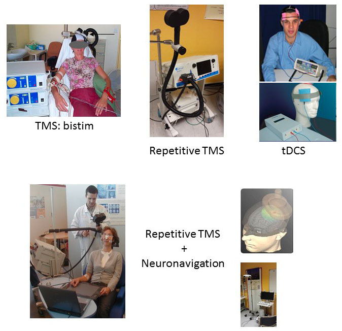 ToNIC Inserm : Stimulation Magnétique Transcrânienne et Transcranial Direct Current Stimulation